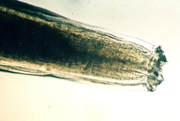 уничтожение паразитов в организме по островскому