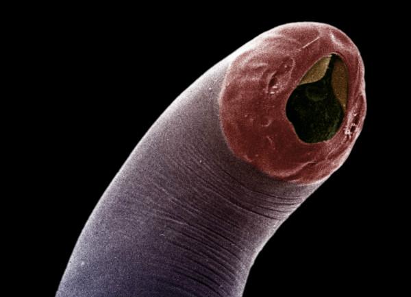 паразиты вызывающие болезни человека