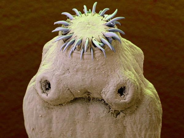 черви под кожей человека на лице