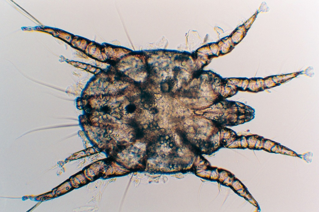 паразиты под ногтями человека