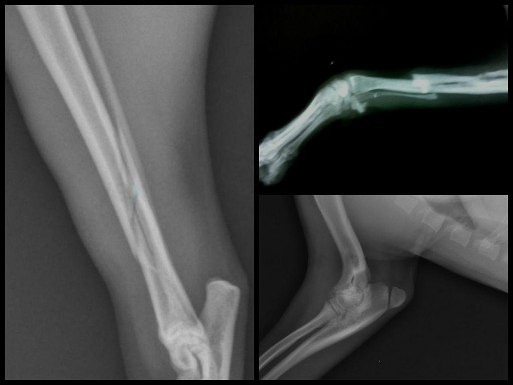 авульсионный перелом суставной
