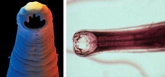 паразиты в окуне видео