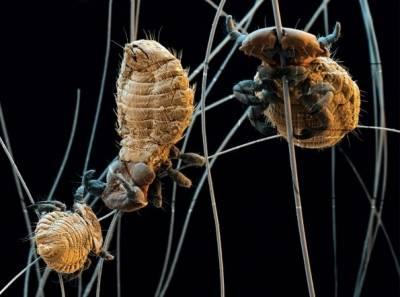 обнаружение паразитов в организме ребенка