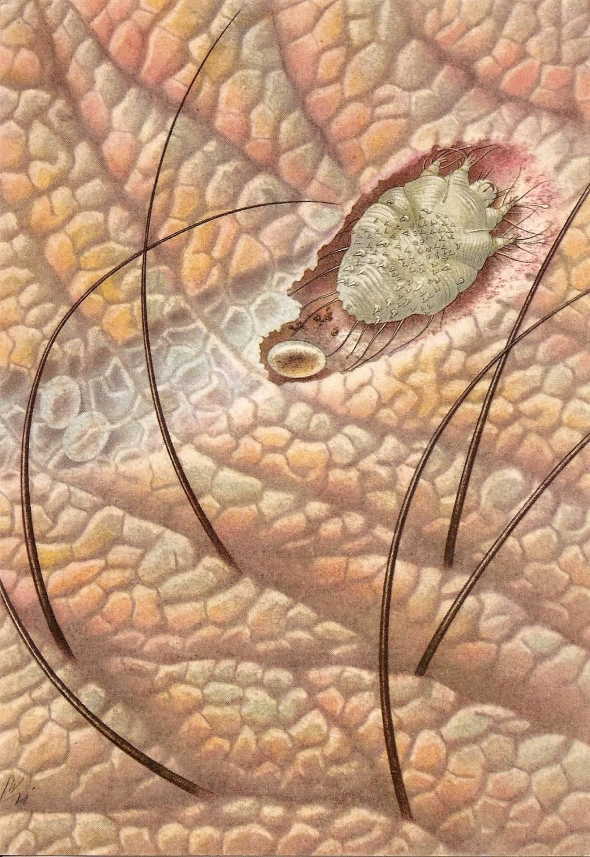 как лечить паразитов в человеке