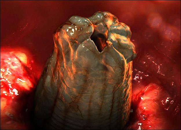 видео про глисты у человека