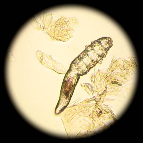 смерть от паразитов
