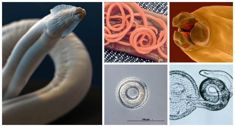 Круглые черви паразиты картинки
